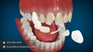 North Carolina Invisalign Price - National Cosmetic Dentist Directory