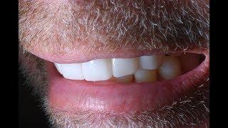 Virginia Invisalign Teeth - National Cosmetic Dentist Directory